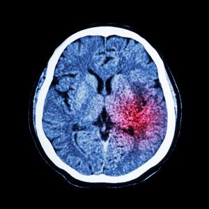 CT scan of brain show ischemic stroke or hemorrhagic stroke.